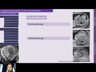 Imaging Facial Clefts in the First Trimester,Dr.Sepideh Sefidbakht